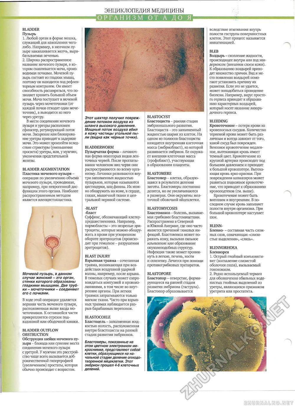 Илеоцистопластика