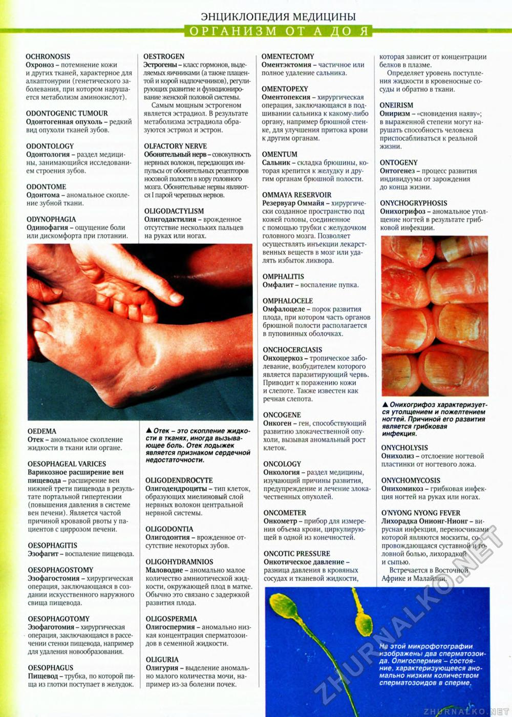Оментэктомия