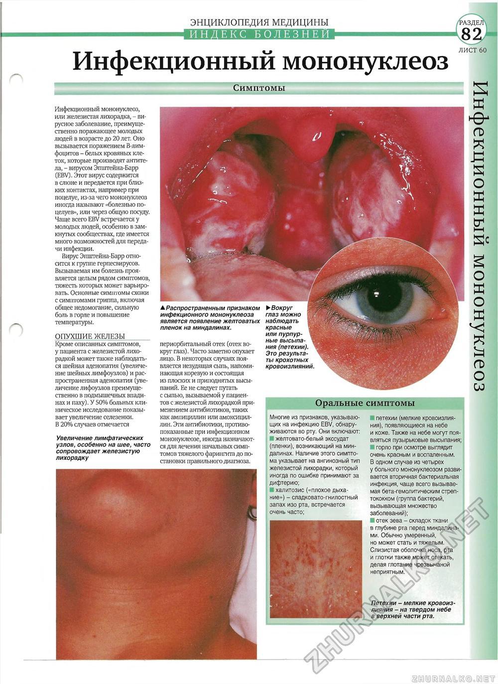 Мононуклеоз инфекционный фото