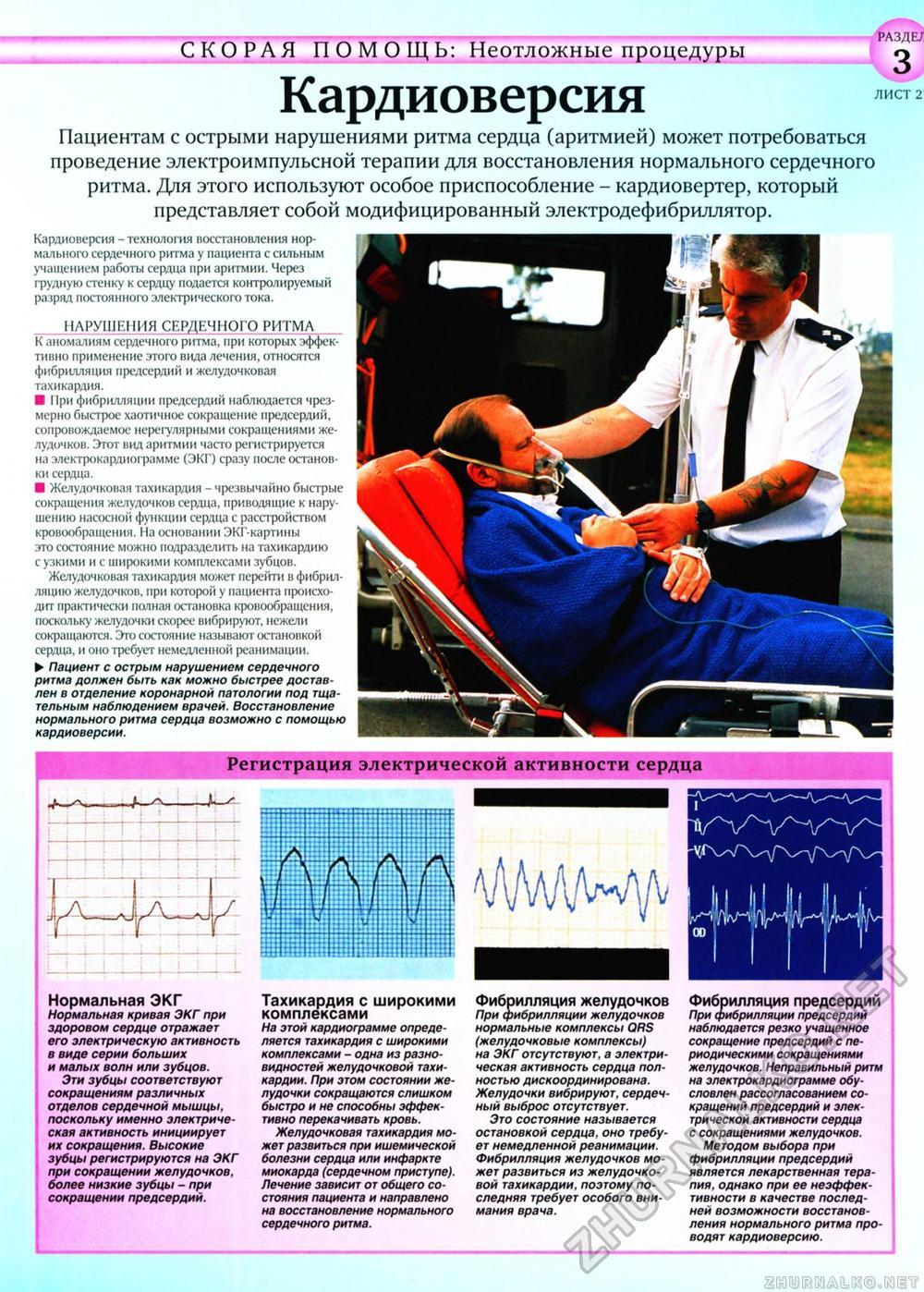 Снять при аритмии сердца в домашних условиях 58