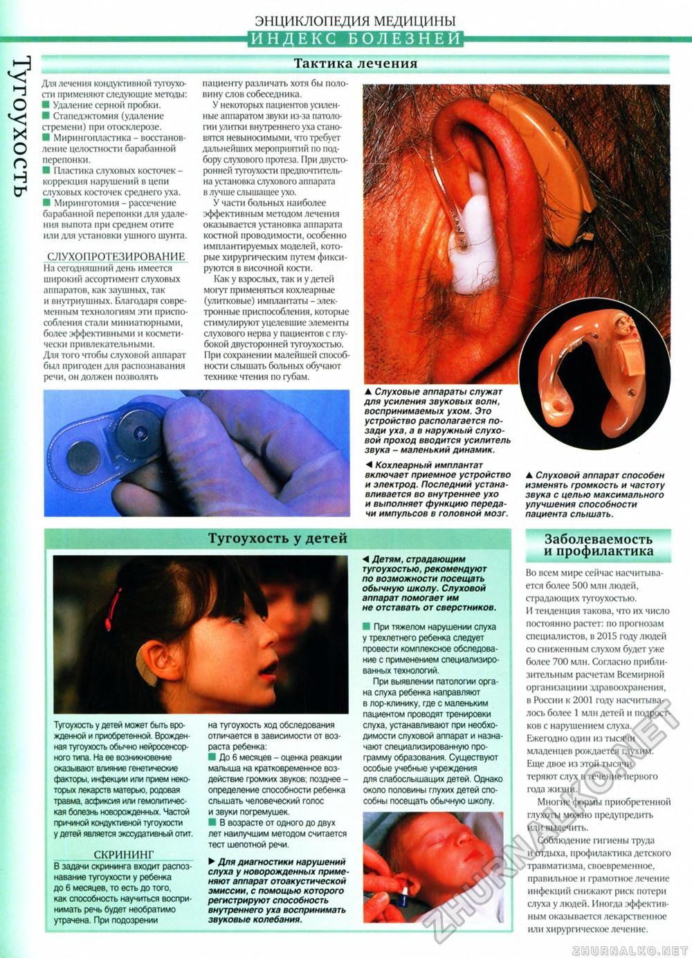 Стапедэктомия фото